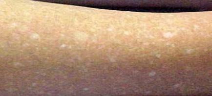 Dermatologia & Saú | Manchas na Pele
